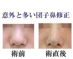 20150715鼻尖メインバナー