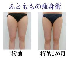 20150812大腿脂肪吸引メインバナー
