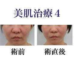 美肌治療4メインバナー